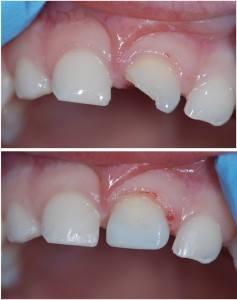 cretamums-dental-injuries-in-toddlers2