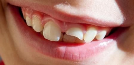 cretamums-dental-injuries-in-toddlers